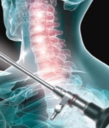 Cirugia columna vertebral