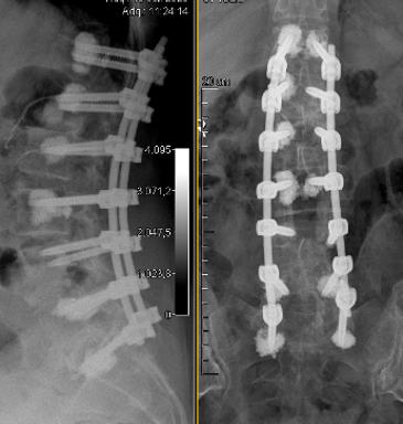 deformidades espinales